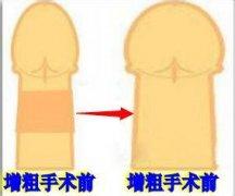 阴茎短小怎样增粗